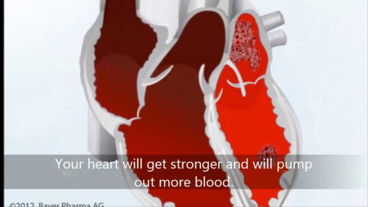 How To Treat Angina Pain Naturally