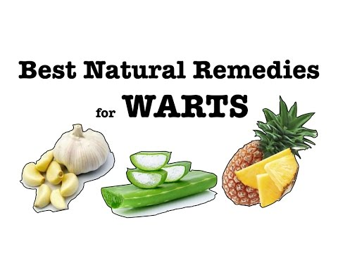 Best Natural Remedies For Warts Including Genital Get Rid Of It FAST And Without Surgery