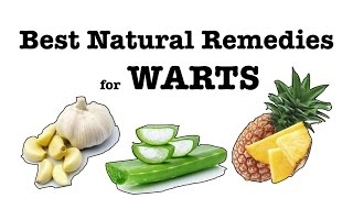 ✔Best Natural Remedies for Warts (including genital warts) Get rid of it FAST and without surgery!