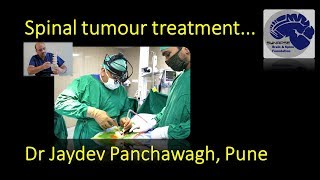 Spinal tumour treatment   Dr Jaydev Panchawagh, Pune