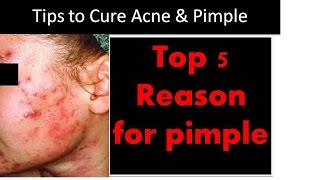 Top 5 Reason for Pimple and acne - with bloopers !!!!! Thumbnail