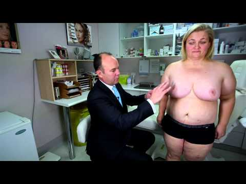Massive Weight Loss Surgery With Dr Jeremy Hunt – Real Patient Story