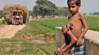 Repeat youtube video The Boy with 8 Limbs in India