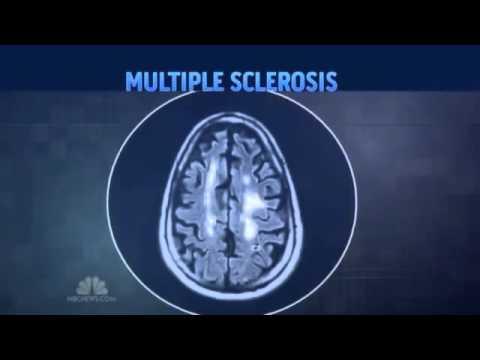 NBC News - BG12 Tecfidera drug vs Protandim