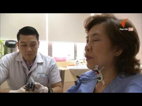 สุขภาพดีกับหมอฟื้นฟู ตอน โรคหลอดเลือดสมองกับการฟื้นฟูสมรรถภาพ