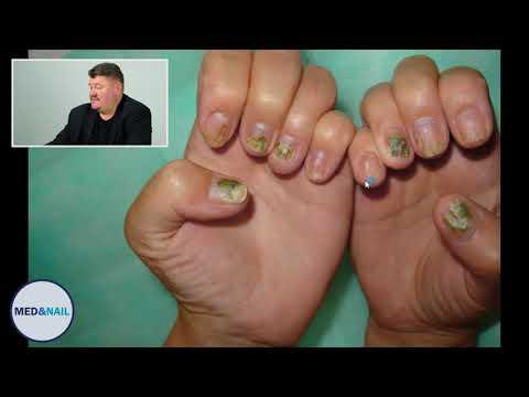 Синегнойная палочка лечение на ногтях