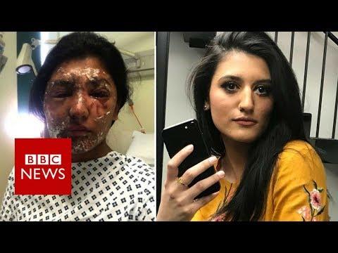 Acid survivor pities her attacker - BBC News