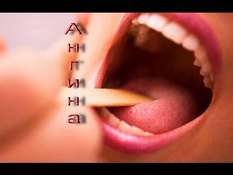 Антибиотики от ангины: какие антибиотики принимать при