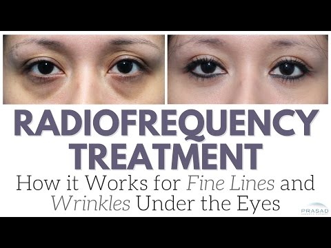 How Radiofrequency Devices Work on Fine Lines and Wrinkles, and Why it's Not the Only Treatment