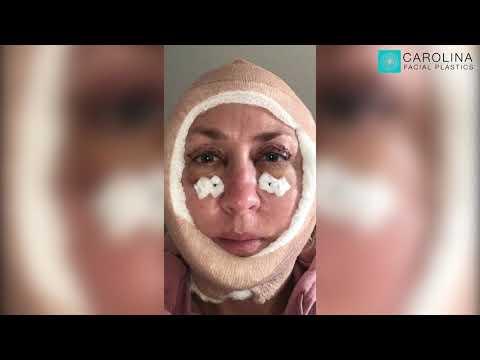 Upper and Lower Blepharoplasty and Mini Facelift Vlog