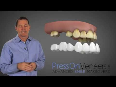 Don't Buy DENTURES | You have another Choice