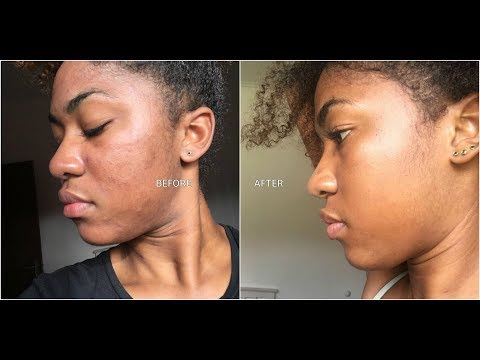 MY 1ST MICRODERMABRASION TREATMENT | WITH BEFORE AND AFTER P