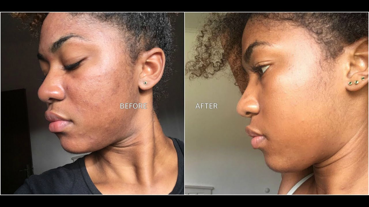 MY 1ST MICRODERMABRASION TREATMENT | WITH BEFORE AND AFTER PICS | Renacer Spa Curaçao