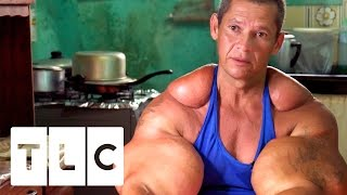 Bodybuilders Inject Muscles With Oil | Real Life Hulks(Bodybuilders risk their lives by injecting their muscles with oil, with potentially life-threatening consequences. Subscribe for more great clips: ..., 2016-12-02T15:00:01.000Z)