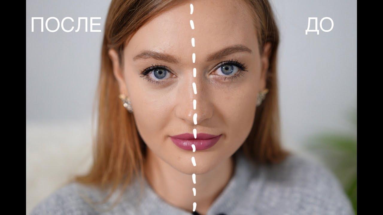 Как убрать синяки под глазами новые фото