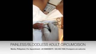 Painless and Bloodless Adult Circumcision