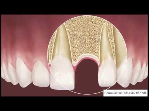 Dental Implant in Vietnam | Serenity International Dental Clinic Hanoi