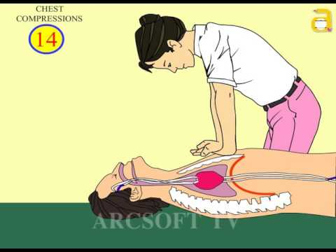 FIRST AID RESCUE BREATHING Animation