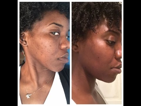 How to get rid of Acne Scarring/dark spots on Dark skin