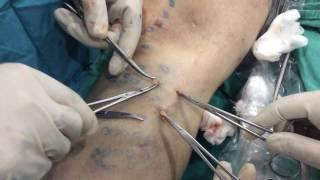 видео Операция минифлебэктомия