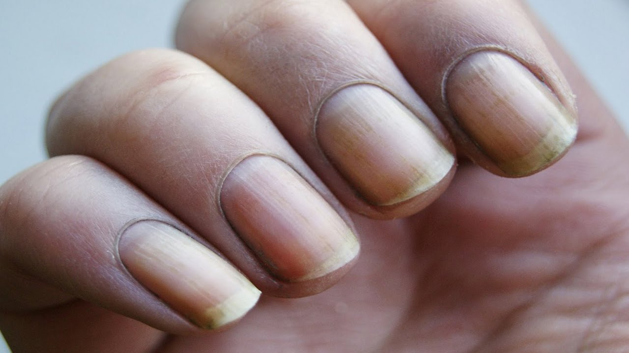 How to Get Rid of Yellow Nails - YouTube