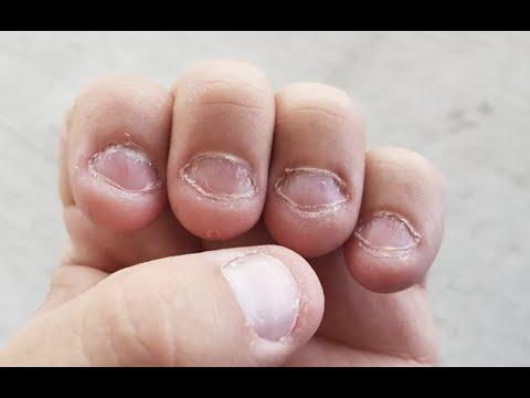 Bitten Nails Transformation And Amazing Nail Design! thumbnail