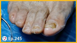 Ep 245 A Time beaten Senior s Foot Hard To Repair