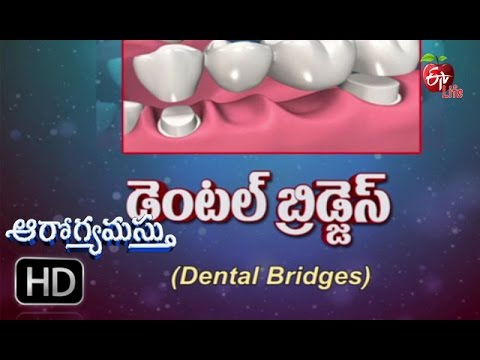Aarogyamastu - Dental Bridge - 1st September 2016 - ఆరోగ్యమస్తు