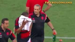 Un jugador del Flamengo se fractura el cráneo en un partido
