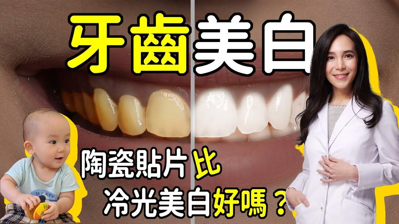 牙齒美白:陶瓷貼片比美白貼或冷光美白好嗎?|林榆芩醫師