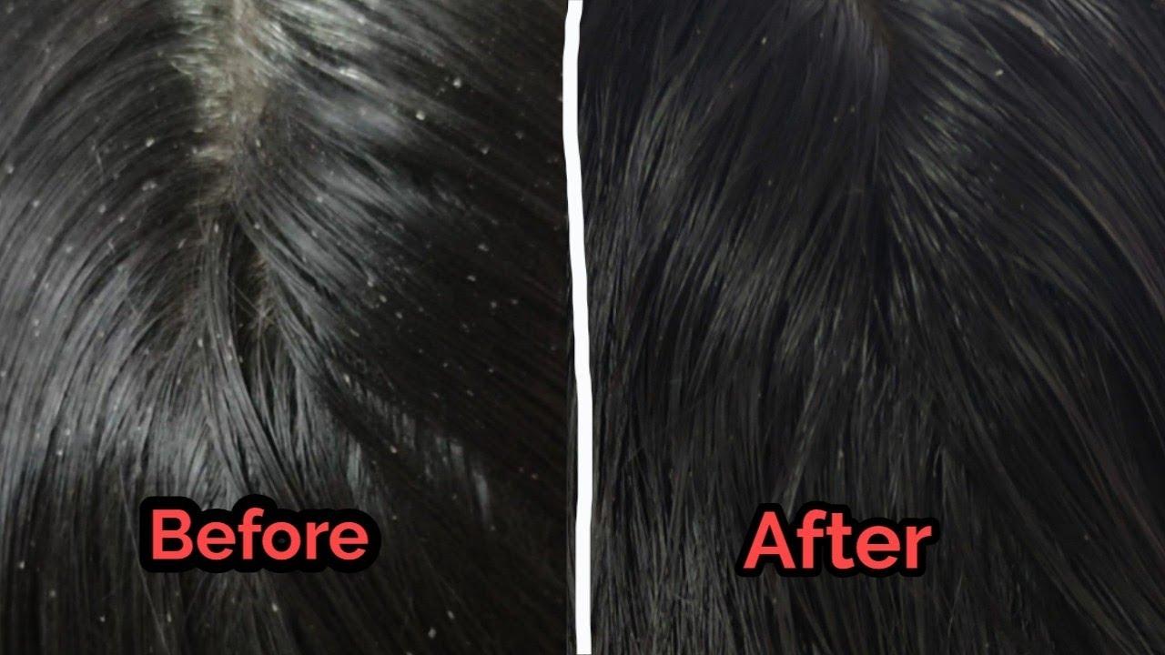 Download Nits and lice treatment Tamil #vinscaretamil#nits#lice#pen#eer#  பேன்#ஈர்# haircare#scalpcare