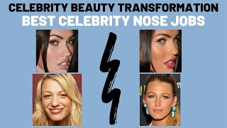 Best Celebrity Nose Jobs in Hollywood