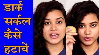 Dark Circle Under Eyes Home Remedy (Hindi)