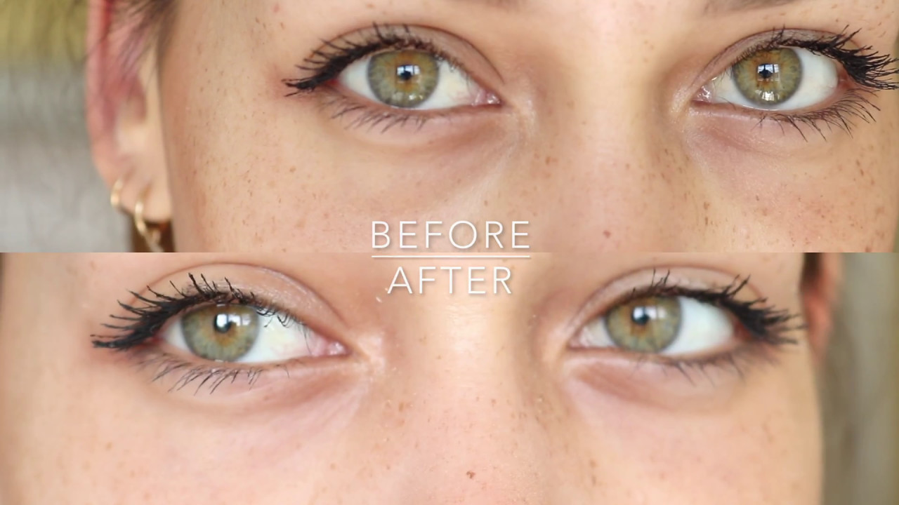 The New Botox In A Tube       Dermalogica Eye Lift