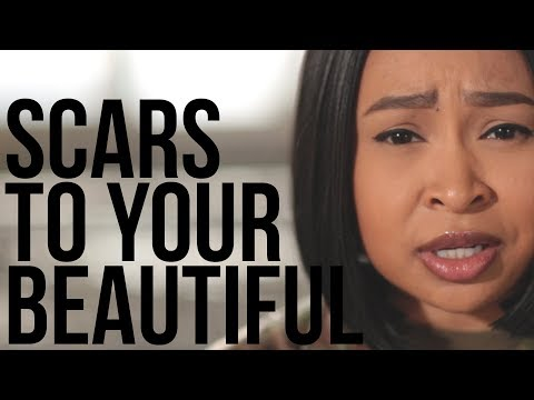 Scars To Your Beautiful - Alessia Cara Cover