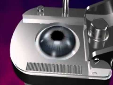 Cirugia Laser de Ojos. Operacion Laser Miopia, Astigmatismo e hipermetropia. Clinicas oftalmologicas