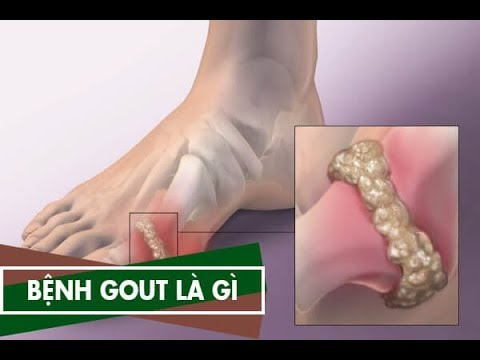 Bệnh Gout là gì – Cách điều trị bệnh Gút hiệu quả trên VTV2