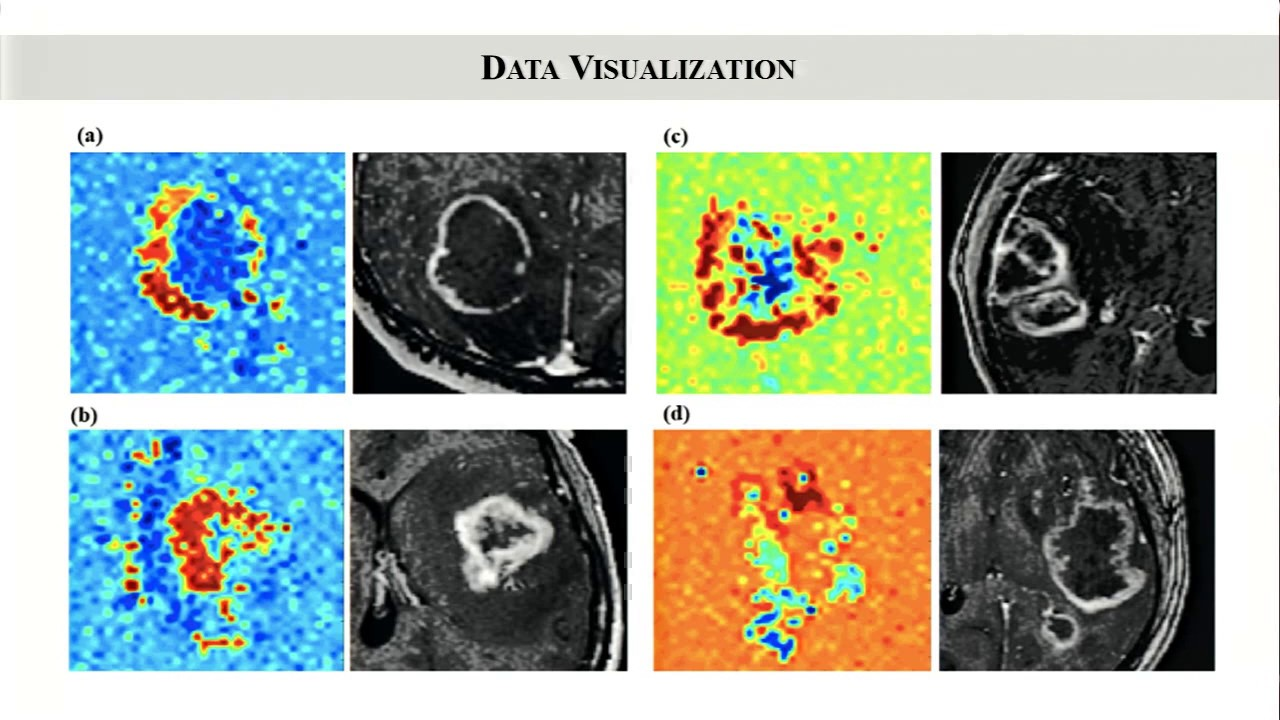 Deep Learning for Predicting Glioblastoma Subtypes from MRI  Peter Chang, MD