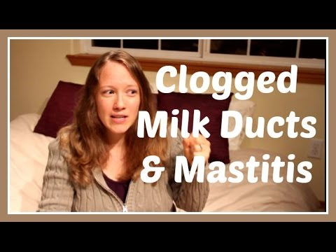 Treating and Stopping Plugged Milk Ducts