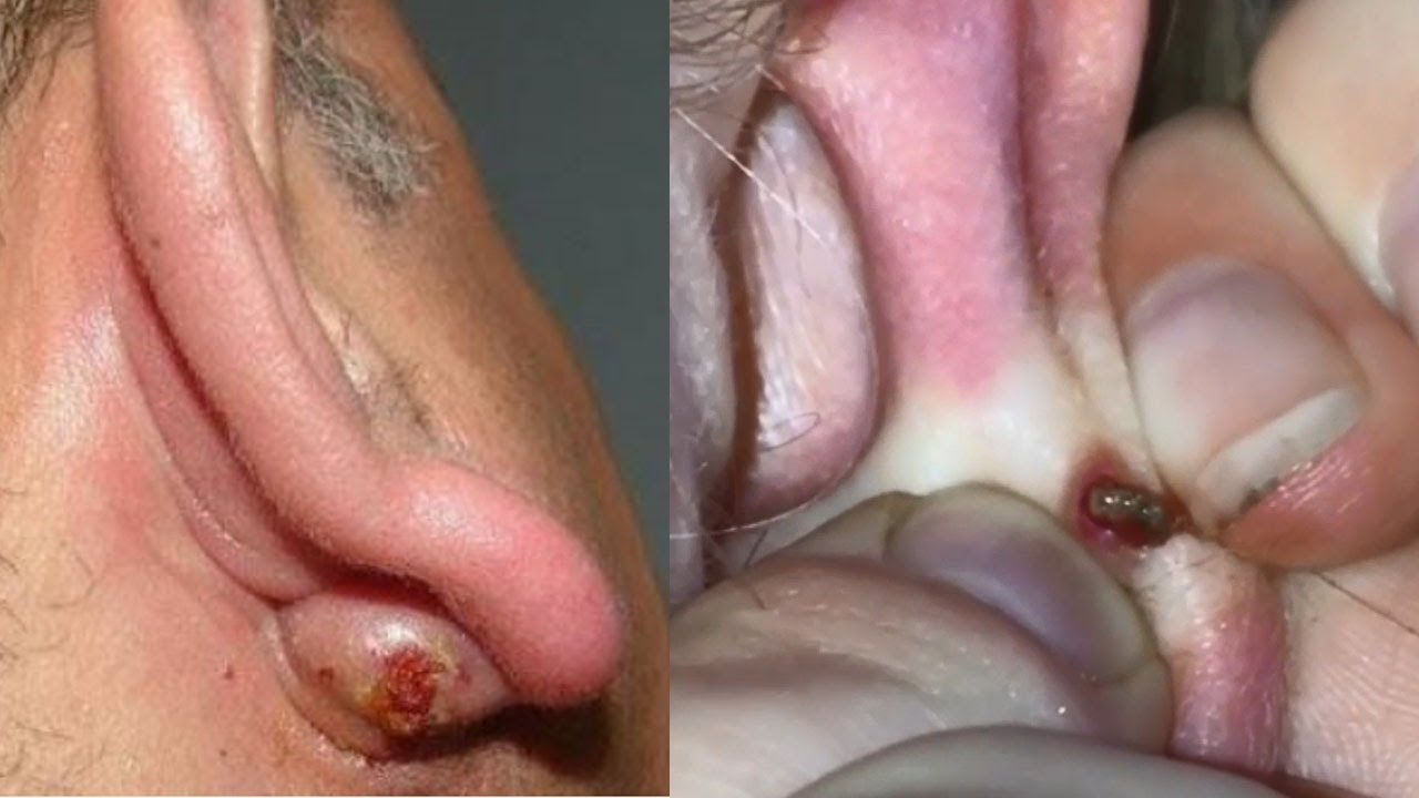 Mr Blackhead's Cysts, Pimple Pops, Zits, Comedones and DPOWs