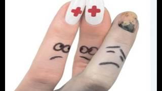 видео Прибил палец, что делать? просто и без боли!