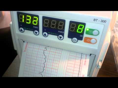 Baby heart beat monitor