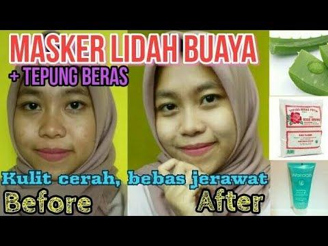 Cara Memutihkan Wajah Menghilangkan Bekas Jerawat Cepat Masker Lidah Buaya By Khairunnisa Adlina Youtube