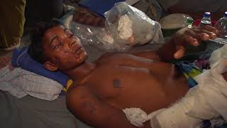 Children among injured in attacks on Rohingya people thumbnail