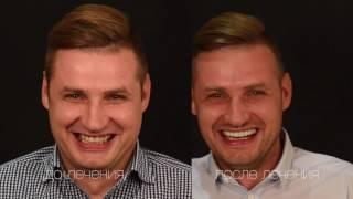 Smile :) clinic - виниры за 1 день!