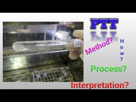 Prothrombin Time Test (PT) Hematology