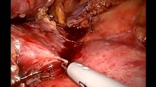 Cancer Of The Body Of Pancreas Techniques For Laparoscopic Distal Pancreatectomy In The Setting Of S