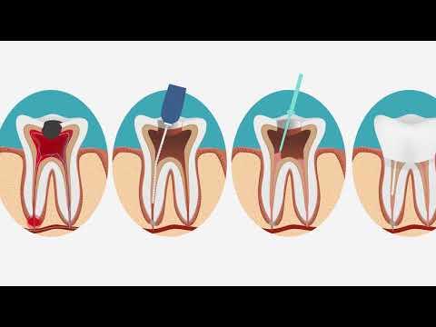 Киста корня зуба