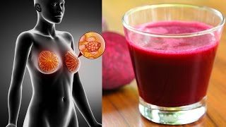 6 Reasons To Have A Glass Of Beet Juice Every Day (Beet Juice Benefits)