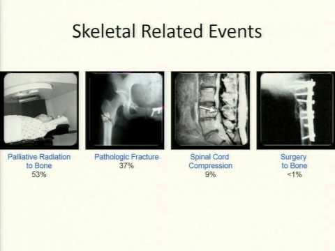 Targeting Bone Metastases with Radium-223 - 2014 Update, Dr. Jeff Michalski
